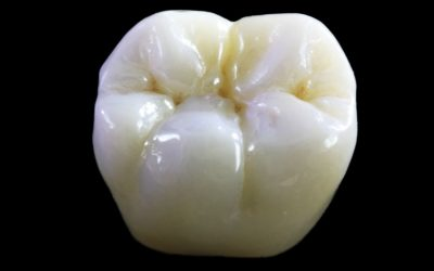 Il Top dell' Estetica dentale ? Le Corone in Zirconio!