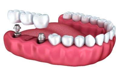 La rivoluzione della Implantologia senza bisturi !(Flap Less)