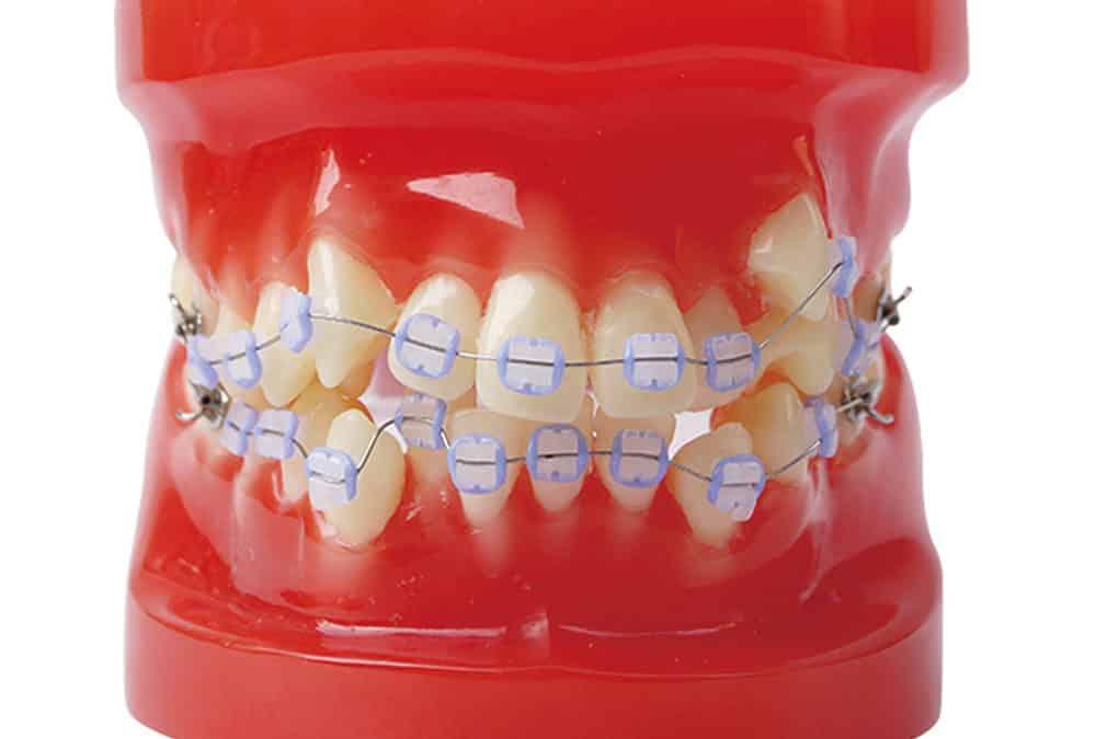Conosci gli esami indispensabili prima di mettere l'apparecchio per i denti?