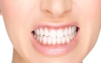 Digrigni i denti durante la notte? Ora c'è la soluzione!