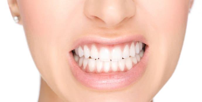 Digrigni i denti durante il sonno? Ora c'è la soluzione!