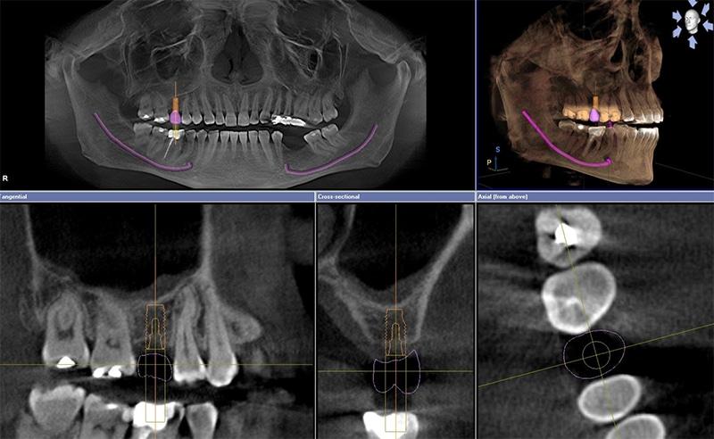 Scopri la Tac Cone Beam 3D dentale!