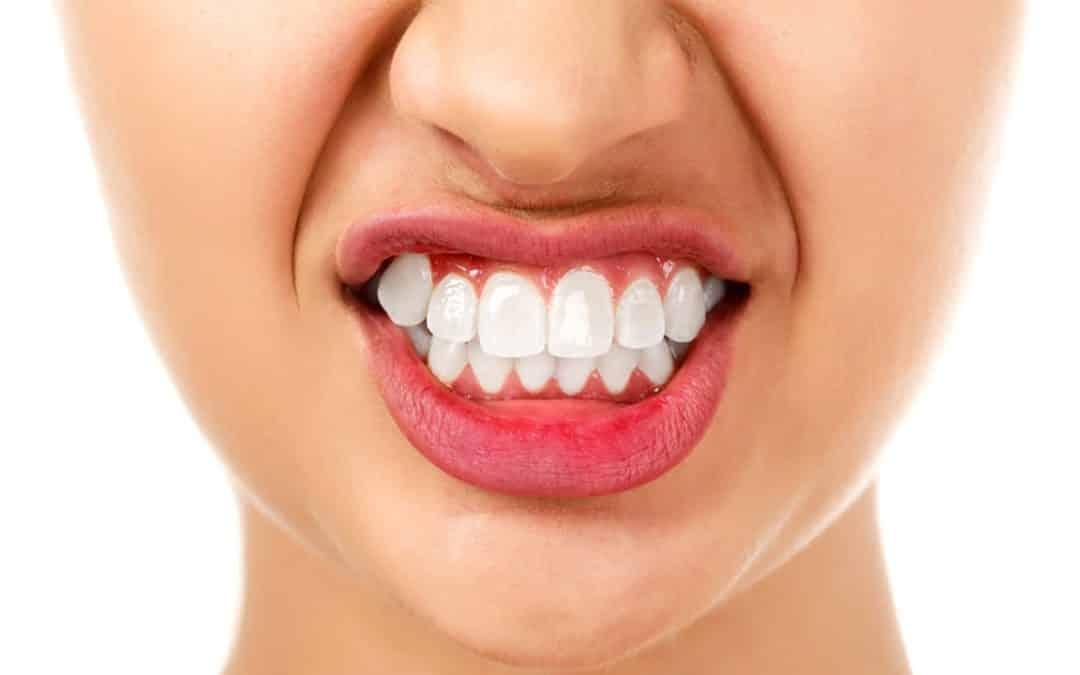 Ho i denti usurati, soffro di bruxismo?