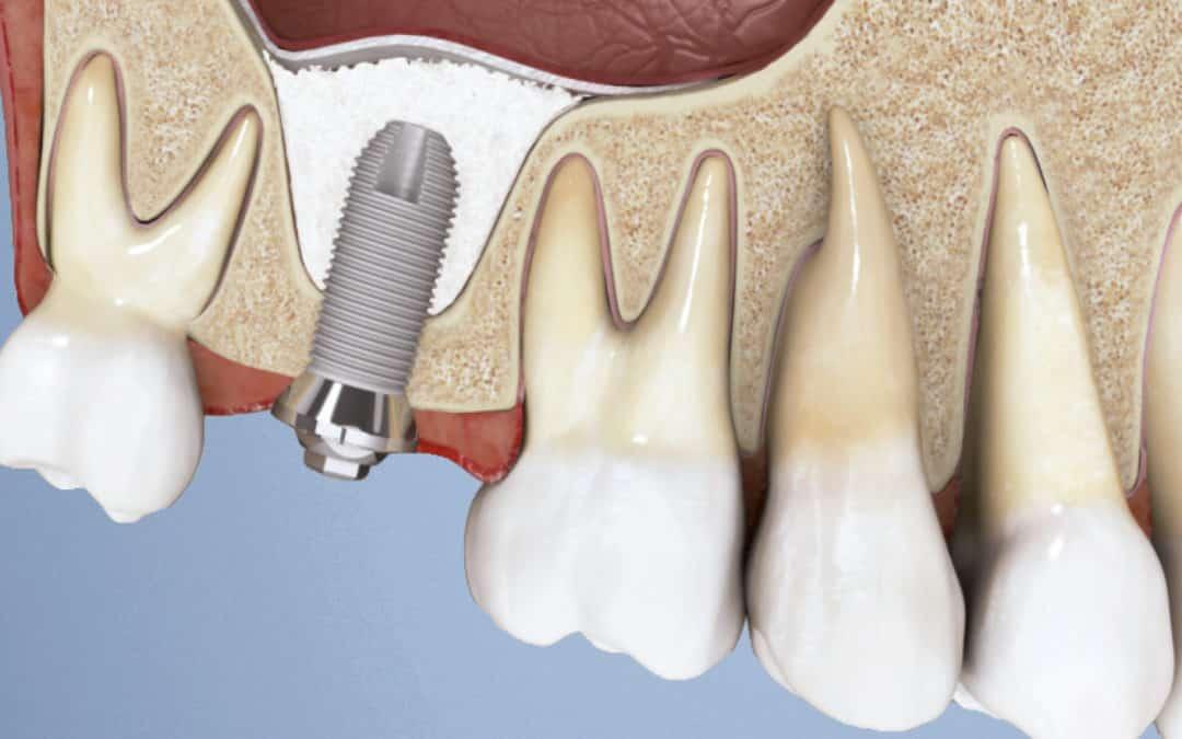 Ho dolore a un impianto dentale qualè la causa?