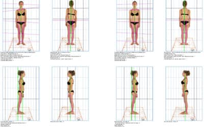 """Il sistema fotografico posturale """"postural experience"""" in uso presso il nostro studio"""