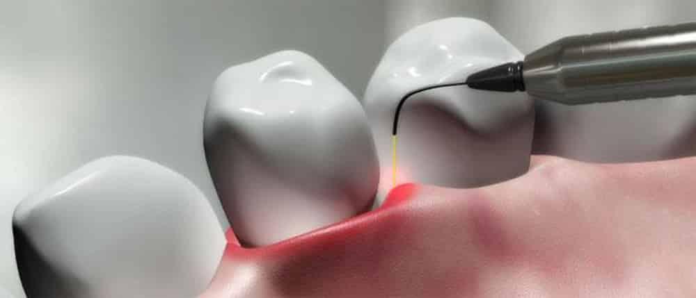 Come curare la parodontite col laser senza bisturi e senza dolore