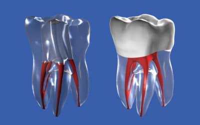 Dottore ho un granuloma al dente è grave?