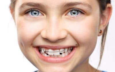 Apparecchio per i denti: Sai davvero quale è quello giusto per il tuo bambino?