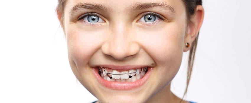 Apparecchio per i denti: sai qual è quello giusto per il tuo bambino?