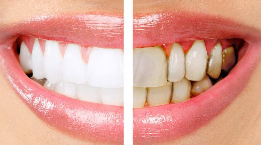 Come stanno le tue gengive? Fai il sondaggio parodontale