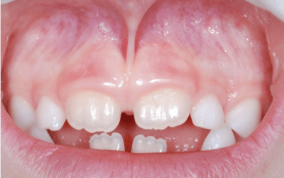 Laser dentale: perché è utile per togliere il frenulo