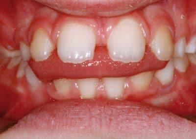 probelmi denti